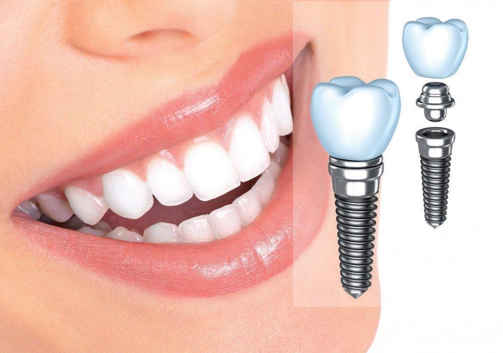 Trồng răng bằng cấy ghép implant có thật sự tốt?