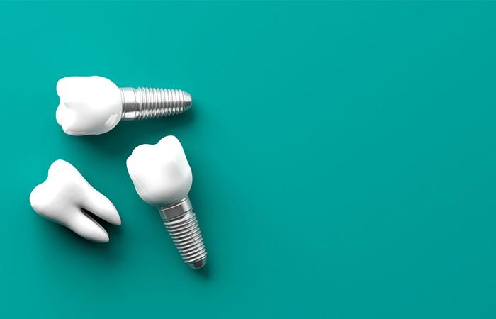 thoi gian cay ghep implant