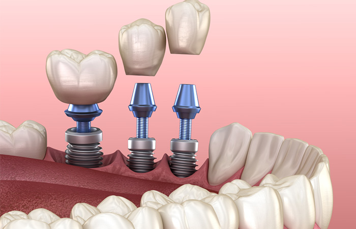 trong rang implant gia re TPHCM
