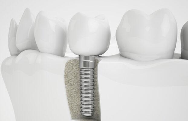 cam implant